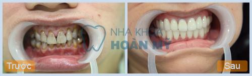 Nguyễn Duy Khánh: Tẩy trắng răng bằng công nghệ Laser Whitening