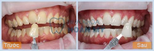 Nguyễn Duy Quang: Tẩy trắng răng kết hợp Laser Whitening và máng tẩy