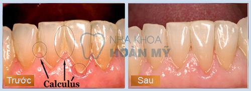 Cạo vôi răng có giúp làm trắng răng không?