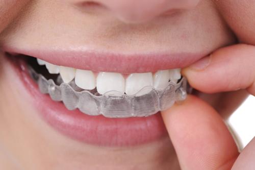 Thông tin hữu ích về tẩy trắng răng tại nhà 1