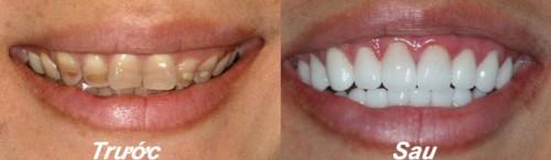 Đào Thanh Phương: Tẩy trắng răng bị xỉn màu nặng