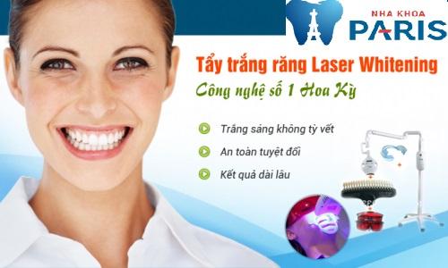 Bí quyết tẩy trắng răng với công nghệ tiên tiến nhất hoa kỳ
