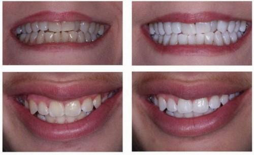 Tìm hiểu các cách chữa răng ố vàng hiệu quả nhất hiện nay? 2