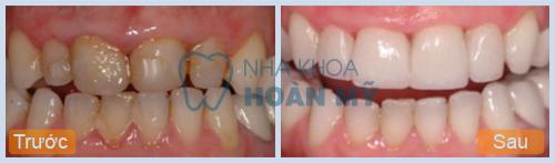 Tẩy trắng răng xỉn màu hiệu quả nhất bằng cách nào 2