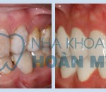 Có tẩy trắng răng bị loang màu được không?