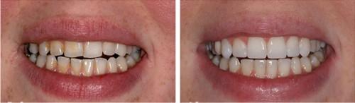 Dụng cụ làm trắng răng tại nhà có an toàn hay không?