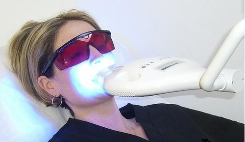 Làm trắng răng bị xỉn cần lưu ý những gì 2