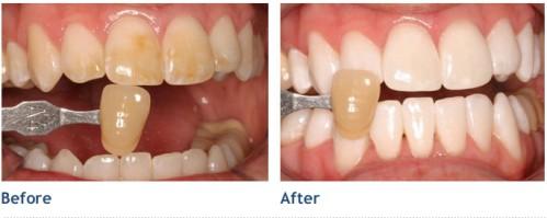 Làm trắng răng ở nha khoa nào là tốt nhất? 2