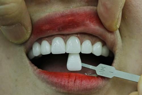 Làm trắng răng ở nha khoa nào là tốt nhất? 3