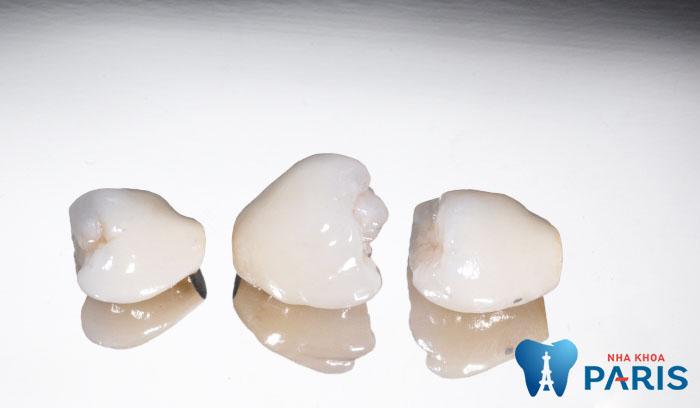 Có thể tẩy trắng răng sứ được không và duy trì lâu dài không? 1
