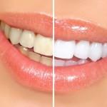 Chỉ tẩy trắng răng 1 hàm có thẩm mỹ không?