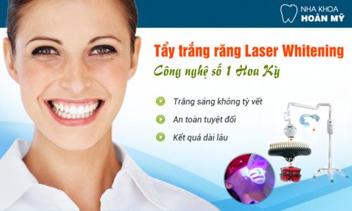 Tẩy trắng răng bằng Laser giữ được bao lâu?