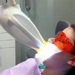 Có thể tẩy trắng răng đã lấy tủy được không?