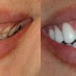 Tẩy trắng răng đen xỉn bằng cách nào tốt nhất?