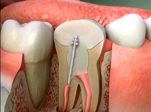 Tẩy trắng răng không hiệu quả 1