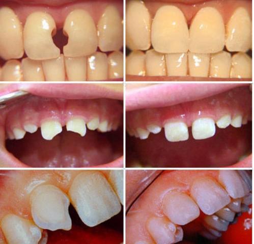 Tẩy trắng răng không hiệu quả 2