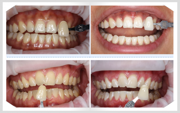 Tẩy trắng răng tại nhà và những thông tin hữu ích