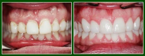 Vũ Minh Tuyết: Tẩy trắng răng bị ố vàng