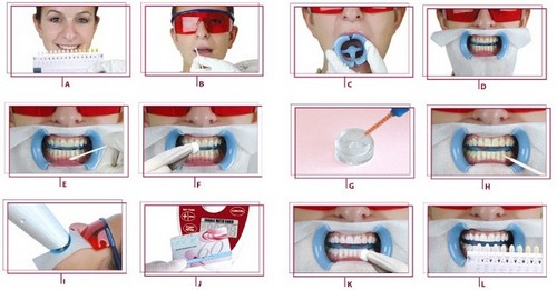 Cơ chế tẩy trắng răng của công nghệ Laser Whitening 2
