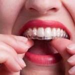 Dùng máng tẩy trắng răng trong bao lâu thì hiệu quả?