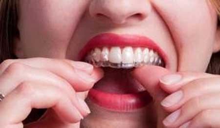 Hiệu quả cao với giải pháp tẩy trắng răng duy trì 2