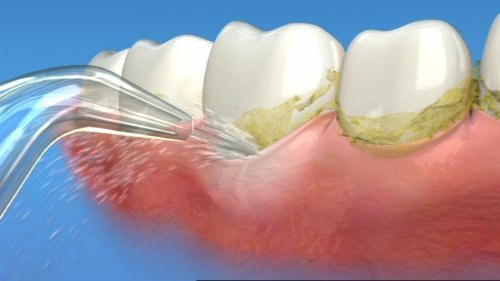 Cạo vôi răng cố thể làm trắng răng không?