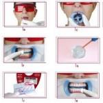 Laser Whitening tẩy trắng răng có an toàn không?