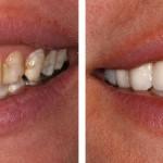 Vì sao không thể tẩy trắng răng có nhiều vết trắng đục?