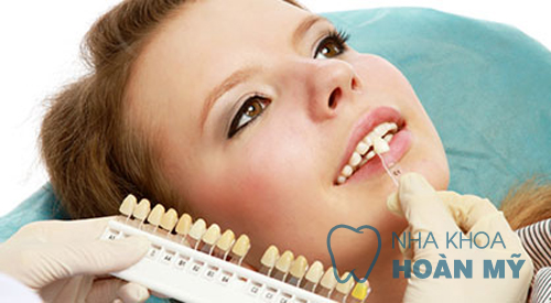 Tẩy trắng răng nhanh có an toàn cho sức khỏe không 1