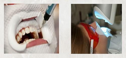 Tẩy trắng răng nhanh có an toàn cho sức khỏe không 2