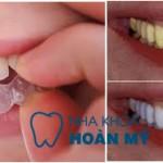 Giá làm trắng răng bằng máng tẩy có đắt không?