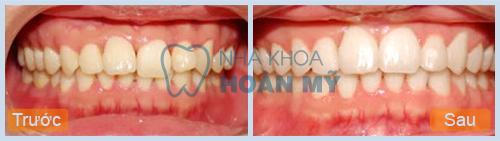 Giá tẩy trắng răng duy trì hết bao nhiêu tiền?