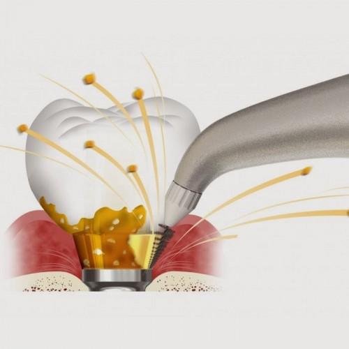 Những lợi ích bất ngờ của phương pháp làm trắng răng định kỳ 3