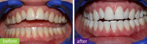 Tại sao phải thực hiện ngậm máng tẩy trắng răng tại nhà?