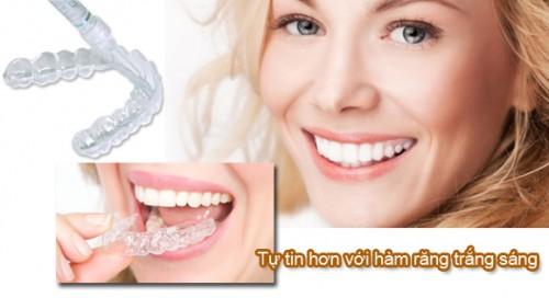 Dùng máng tẩy trắng răng tại phòng nha có gì khác biệt 1
