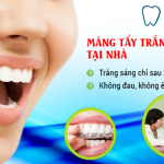 Giá tẩy trắng răng bằng máng tẩy tại Hoàn Mỹ bao nhiêu tiền