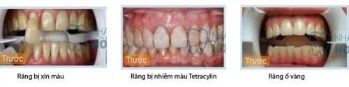 Nguyên nhân nào làm răng mòn men dễ xỉn màu hơn 1