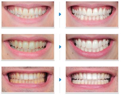 Nguyên nhân nào làm răng mòn men dễ xỉn màu hơn  2