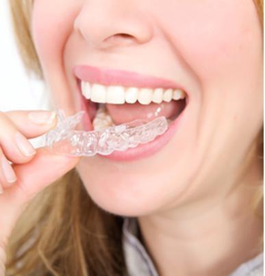 Tẩy trắng răng an toàn cần lưu ý những vấn đề gì? 5