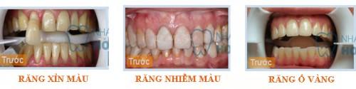 Những trường hợp nào có thể tẩy trắng răng hiệu quả