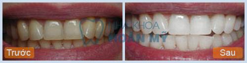 Có thể tẩy trắng răng sứ được không?