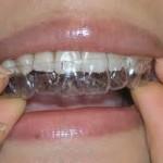 Thời gian tẩy trắng răng bằng máng tẩy mất bao lâu?