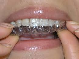 Giá làm trắng răng bằng máng tẩy bao nhiêu tiền?