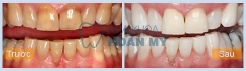 Dịch vụ tẩy trắng răng An toàn Hiệu quả lên đến ❾❾%