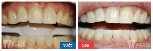 Tẩy trắng răng an toàn tại phòng nha đem lại hiệu quả vượt trội