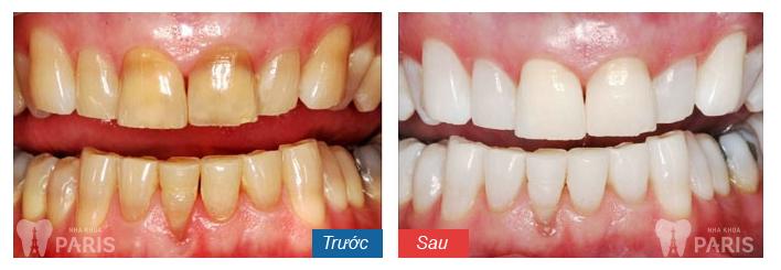 Răng vàng từ bên trong có tẩy trắng được không?