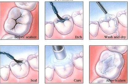 Lợi ích bất ngờ của biện pháp tráng men răng nhân tạo