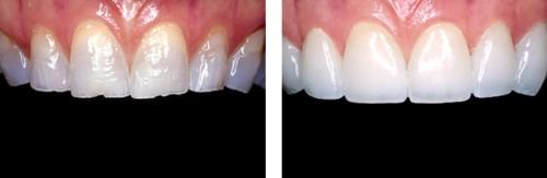 Lợi ích bất ngờ của biện pháp tráng men răng nhân tạo 2