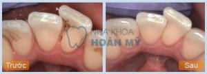 Cạo vôi răng có làm trắng răng không?
