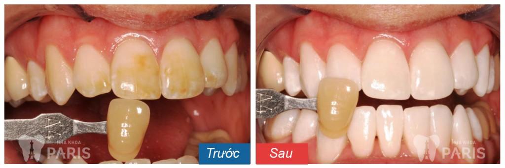 Tẩy trắng răng bằng công nghệ Laser Whitening 7